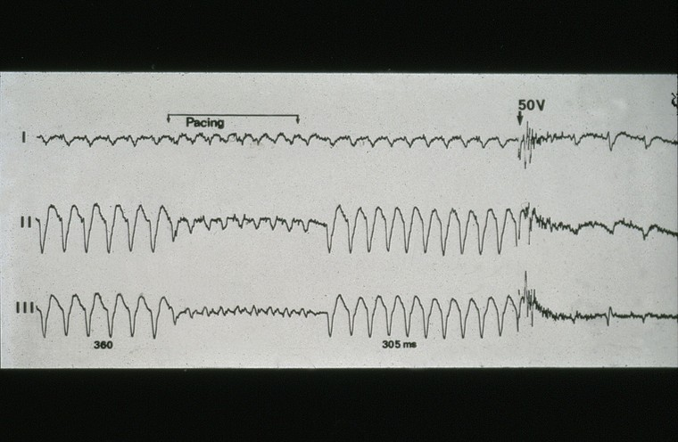 A reading from an intracardiac electrogram, printed on paper, showing pacing and the delivery of a shock.
