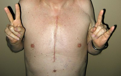 A man's chest with scar running down the centre of it. He holds his hand in victorious and defiant gestures,